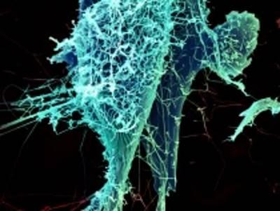 how_to_survive_ebola_5_ways_to_survive_ebola_virus